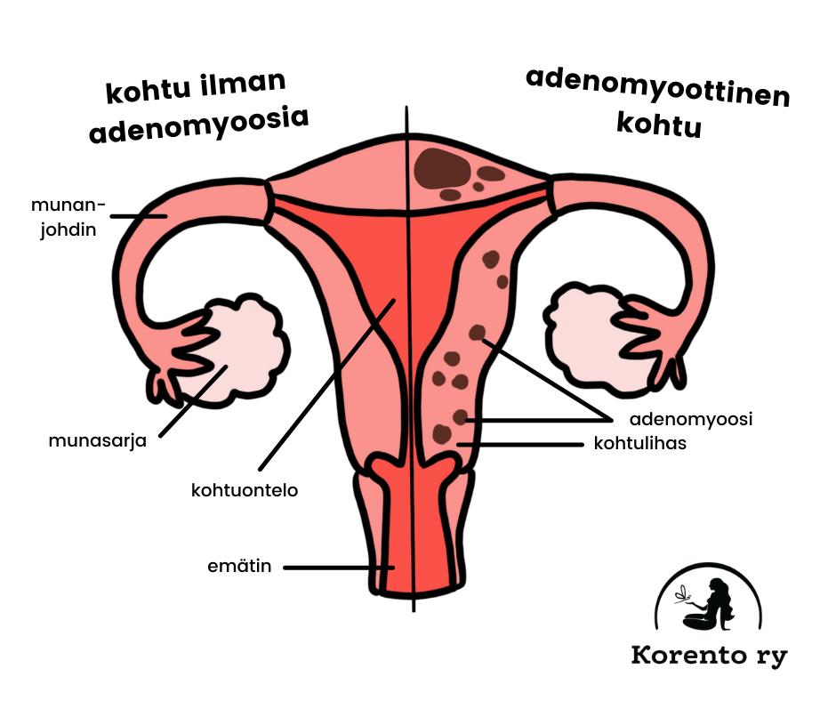 adenomyoottinen kohtu
